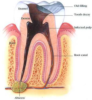 Pulp death and dental abscess.Image taken from http://www.andoverdmd.com/treatment_root_canal.html