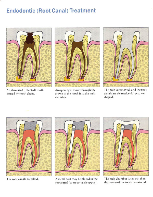 Sequence of an endodontic treatment