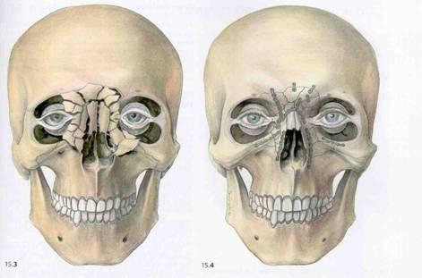 Jaw repair  Picture taken from www.biomed.metu.edu.tr/.../Bone-Plates_kayin.htm