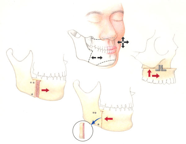 orthognathic surgery for jaw alignment  Picture taken from  www.drkaseyli.com/orthognathic.shtml