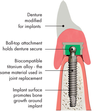Denture implants.Image is taken from http://www.biohorizons.com/denture_stabilization.aspx