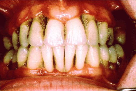 Severe periodontitis