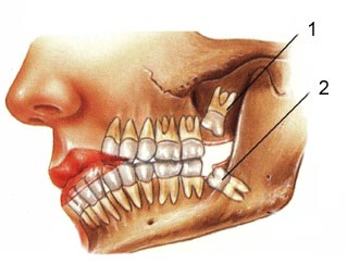 Wisdom tooth position   Picture taken from  www.lunaticgal.com/2008/07/impacted-wisdom-to...
