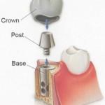 Dental implant Picture taken from bridgerdds.com