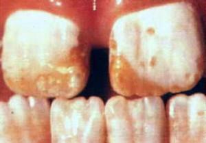 Dental fluorosis @ drdefelice.com