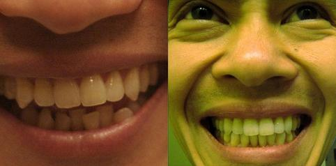 Invisible braces/Invisalign before and after shots (courtesy of reflexblue)
