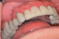 Periodontitis © The Free Dictionary