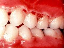 Acute necrotizing gingivitis © Too Smile Dentals