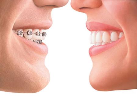 Orthodontic braces VS Invisalign