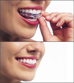 Invisible braces, Invisalign