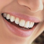Laser Teeth Whitening Smile