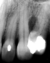 lateral periodontal cyst.Image taken from http://www.dent.ucla.edu/pic/visitors/Cysts/page2.html