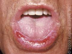 lichen planus tongue