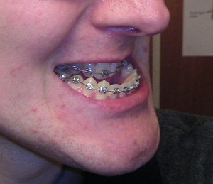 Jaw prior to surgery
