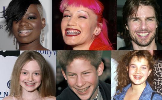 Celebrity with orthodontic braces