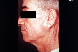 Benign parotid tumor