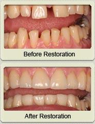 Before and after dental crown treatment @ manhattannydentist.com