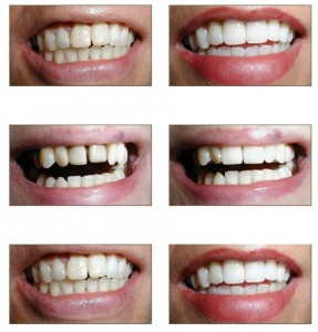 Dental correction for better smile @ clinicbay.com