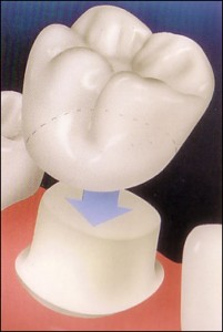 Dental crown @ curetoothdecay.com
