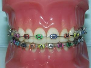 Conventional braces @ fesjon.com
