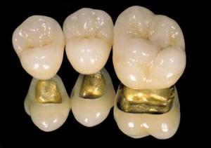 Porcelain fused to metal ( gold ) crown @ orbisdentalllc.com