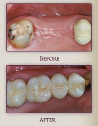 Dental bridge @ franklindentist.com