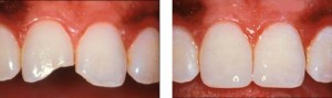 The edges of the teeth are fractured and restored with composite bonding material