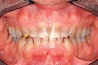 Note the severe staining on the teeth