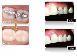 Old amalgam filling replaced with new composite bonding material to resemblance natural teeth