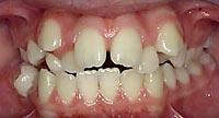 Crooked teeth @ abedorthodontics.com