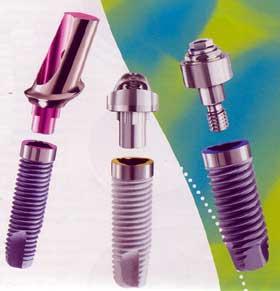 implants, implant , dental implants, dental implant cost