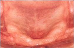 Atrophy of maxillary alveolar ridge