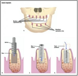 Dental implant © GGS Inc. & Answers Corporation