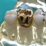 gold crown, dental crown, crown