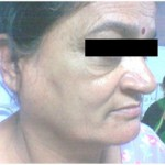 Patient here has swollen parotid slaivary glands due to sarcoidosis disease