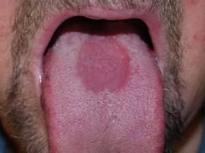 Median rhomboid glossitis
