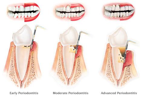 Levels of chronic periodontitis © Stanley Dentistry