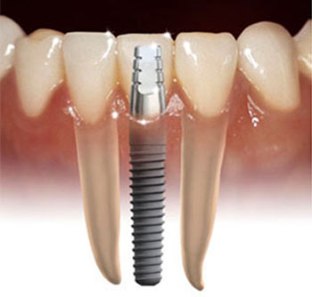implants, implant , dental implants, dental implant cost