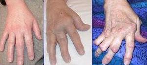 Arthrite rhumatoide Source: http://nihseniorhe...