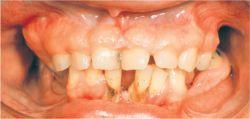 Hereditary gingival fibromatosis © 2009 Farlex, Inc.