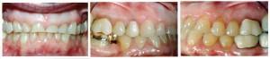Acid erosion of teeth © PennWell Corporation
