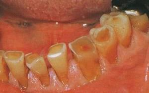 © Australian Denture Care Centre
