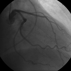 Coronary angiogram of a woman