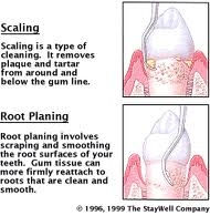 What Is Deep Gum And Root Cleaning Intelligent Dental