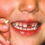 Loss of milk teeth