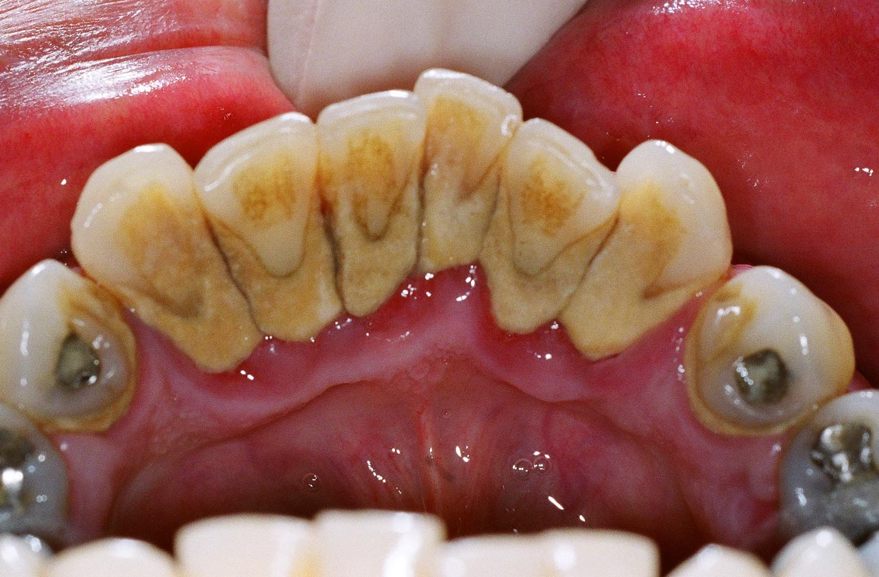 Is Dental Plaque The Main Cause Of Dental Caries
