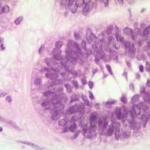 Histopathological view of acanthomatous ameloblastoma