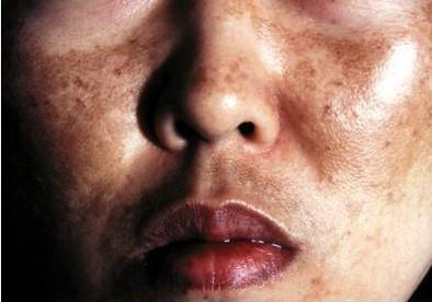 Mouth Pigmentation Part 2   Intelligent Dental